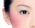 红血丝(敏感肌肤)