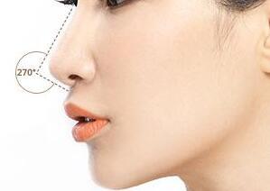 软骨隆鼻多少天能消肿